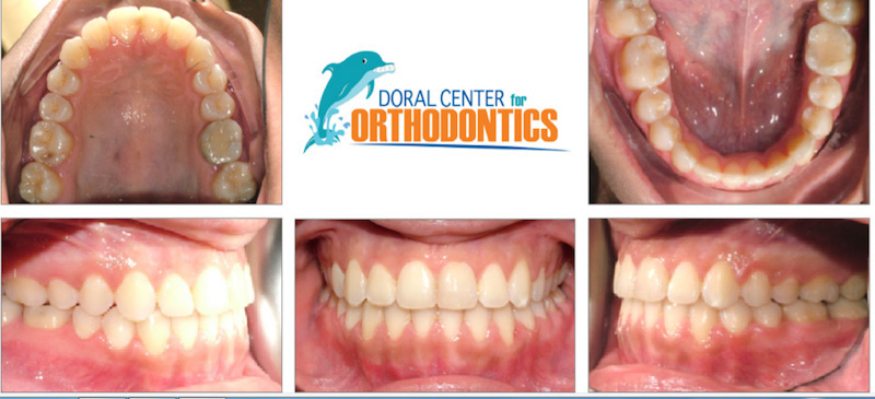 Orthodontics Before And After Pictures in Miami & Doral, FL